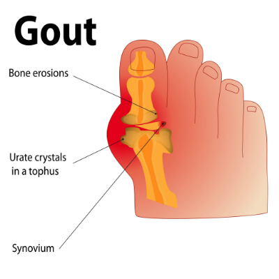 tablets for gout relief gouty arthritis rheumatoid arthritis uric acid in blood and joint pain