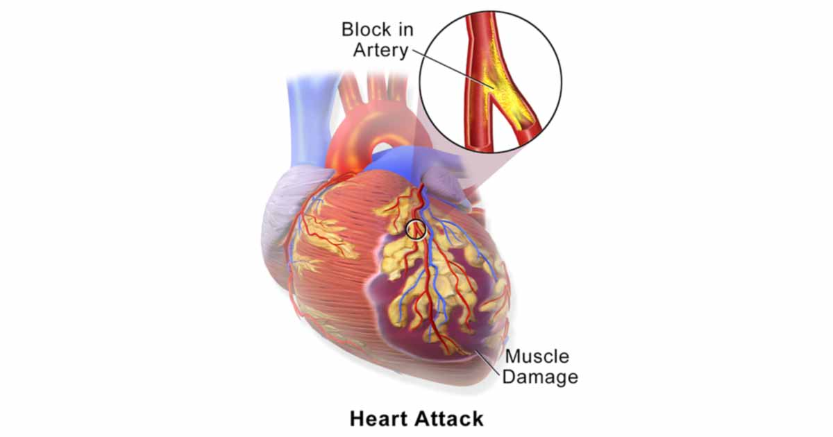 a study of heart attacks Testosterone supplementation reduces heart attack risk in men with heart disease date: april 3, 2016 source: intermountain medical center summary: a new multi-year study shows that testosterone.
