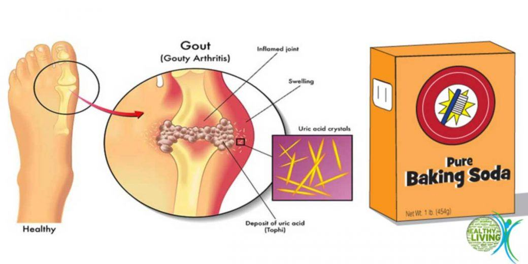 Prevent Gout and Joint Pain by Removing Uric Acid Crystals from Your Body!