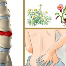 Try These 8 Remedies for Sciatica Pain Before Taking Another Painkiller