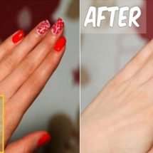 Get Whiter Hands and Feet With These 7 Home Remedies