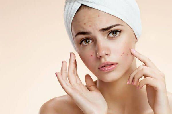 how to get rid of zits and pimples