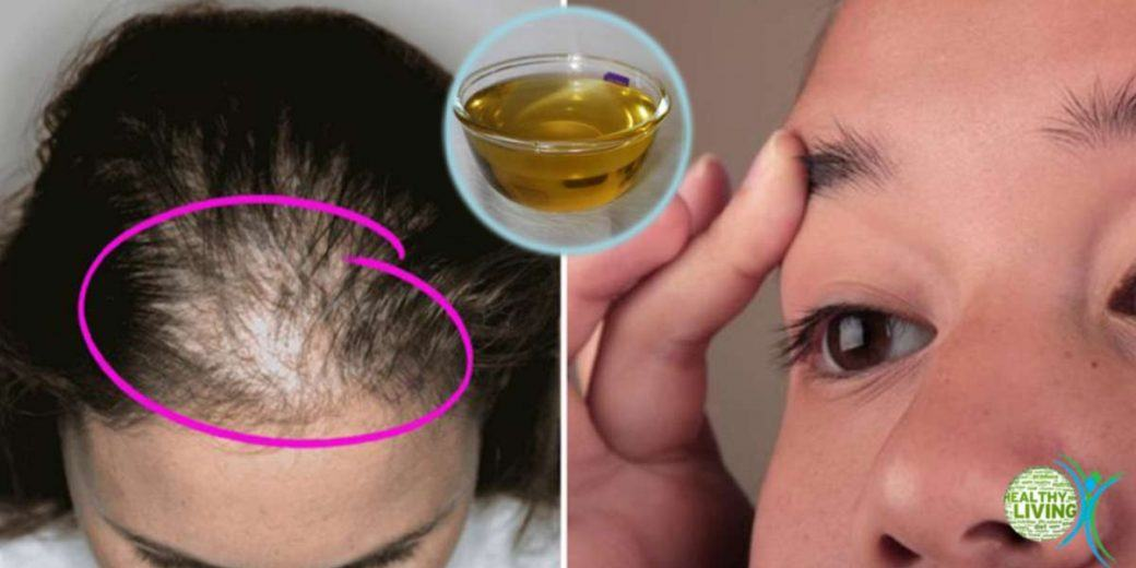 Incredible Oil Prevents Hair Loss and Stimulates Its Growth