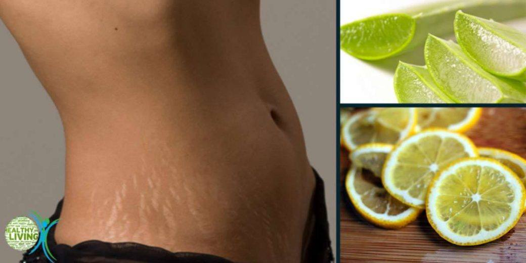 Best Home Remedies to Remove Stretch Marks