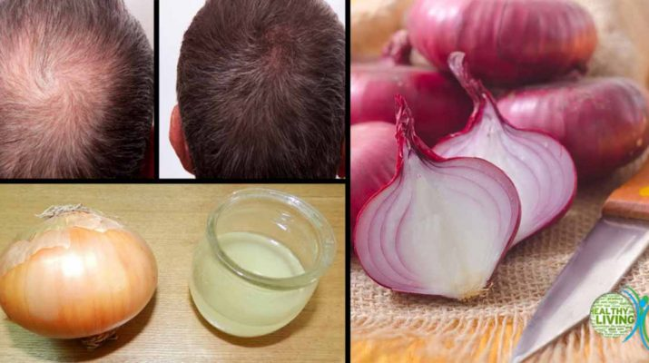3 Ways Onion Juice Can Be Useful for Your Hair, Including Hair Growth