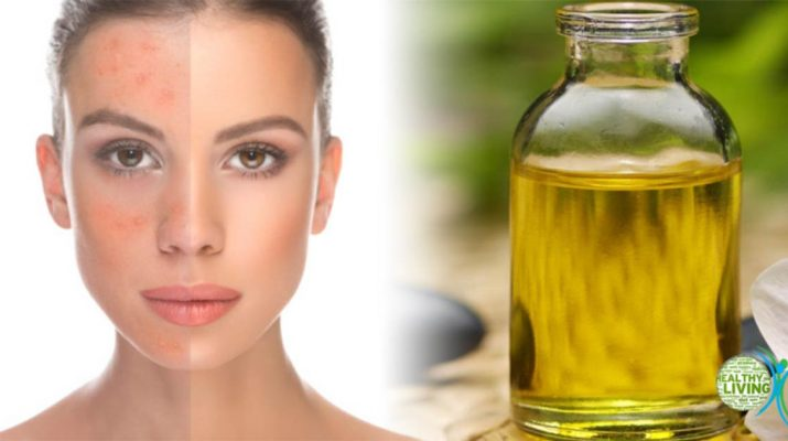 How Castor Oil Boosts the Immune and Lymphatic System