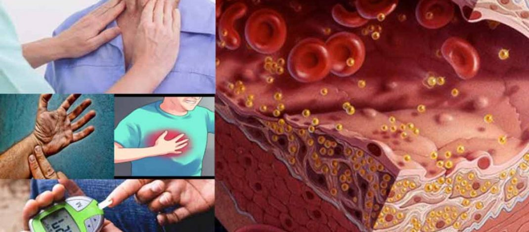 Possible Signs of High Cholesterol