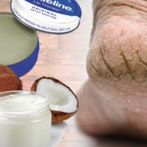 Incredible Ways to Treat Cracked Heels At Home