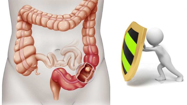 Best Tips to Prevent Colon Cancer