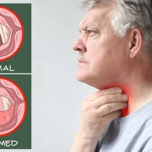 Laryngitis Symptoms and Home Remedies