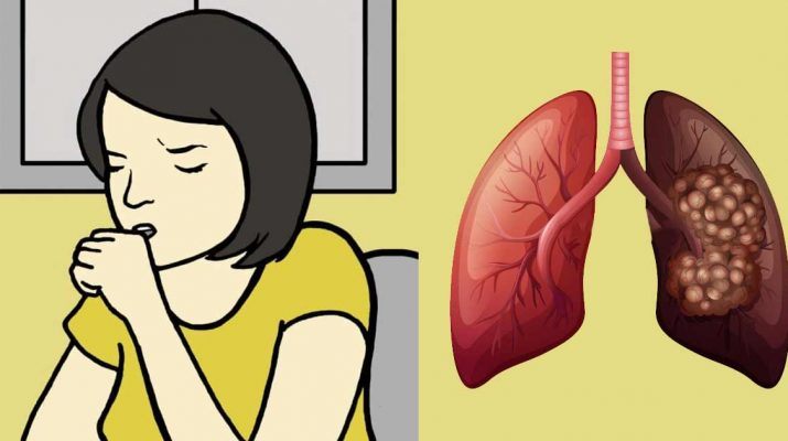 8 Signs of Lung Cancer Women Should Know About