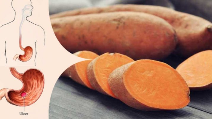 Treat Diabetes, Stomach Ulcer, and Heart Health with Sweet Potatoes