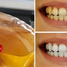 Make Pearl White Teeth With This Simple Ingredient That You Have at Home