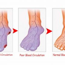 Do You Suffer from Poor Circulation? Here's How to Solve the Problem in Only 30 Minutes!