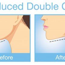 Facial Yoga: How to Eliminate Your Double Chin – Fast!