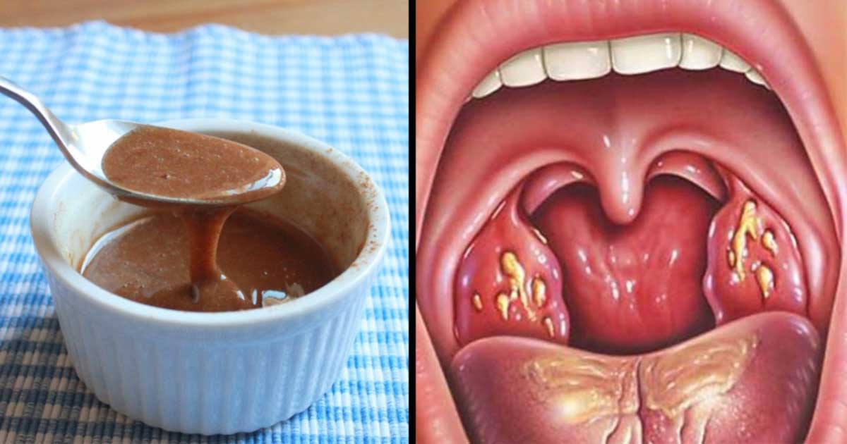 this is how to get rid of throat phlegm
