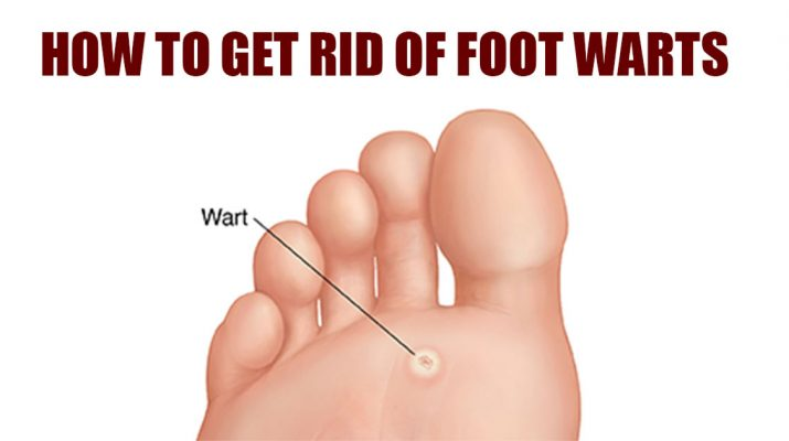 Easy Ways to Get Rid of Warts on the Bottom of the Foot