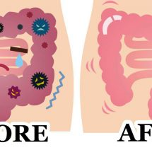 Eliminate Pounds of Waste from Your Colon by Using a 2 Ingredient Remedy