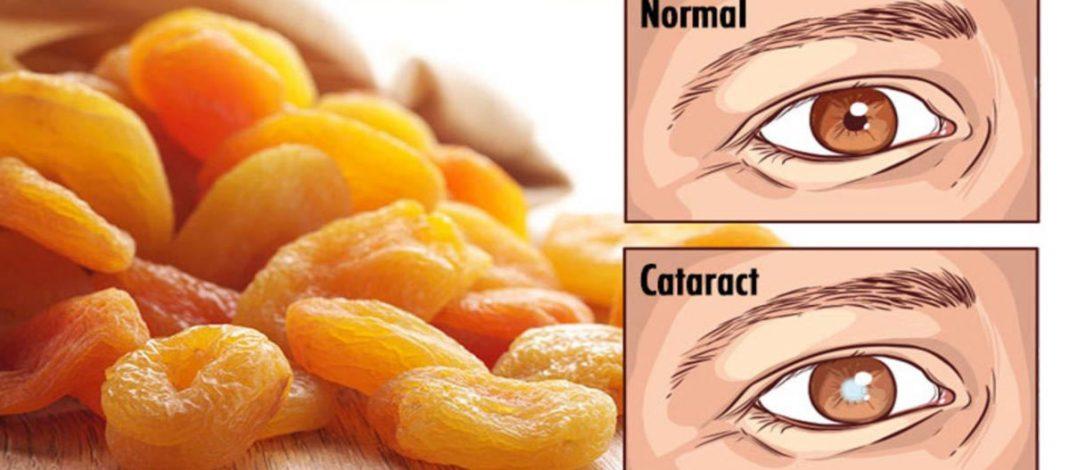 20 Foods to Consume for a Better Eyesight