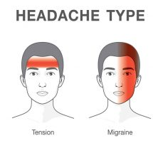 This is How Headaches Reveal What is Wrong With Your Health.