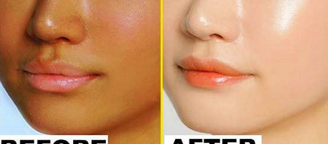 Do This For 15 Minutes Before Going To Bed, It Can Change Your Skin Complexion Overnight!!!