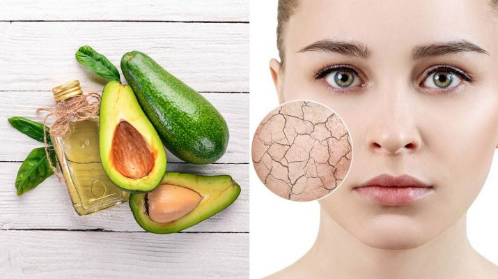 Got-Dry-Skin-Here's-Why-You-NEED-Avocado-Oil