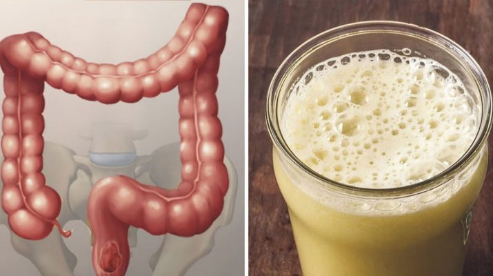 How-To-Remove-Pounds-Of-Waste-From-Your-Colon-In-2-Weeks