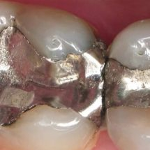 The Deadly Dental Mistake That Has Made Us Sick For Years