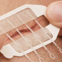 ZipStitch Is A New Way To Close Wounds When You're Out There And Can't Get To Help