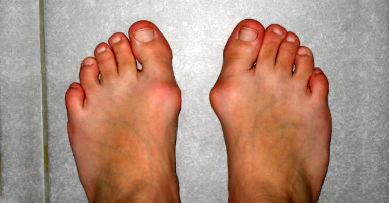 Get Rid of Hallux Valgus Deformity in 10 days Without a Surgery
