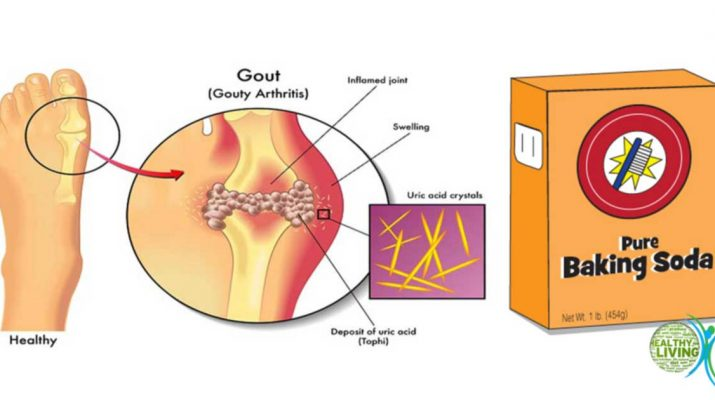 Prevent Gout And Joint Pain By Removing Uric Acid Crystals
