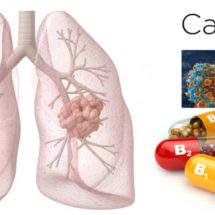 Are Vitamin B6 and B12 Supplements a Cause of Lung Cancer?