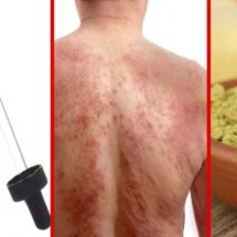 Natural Remedies to Treat Eczema