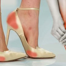8 Tips to Avoid Foot and Heel Pain from Wearing High Heels