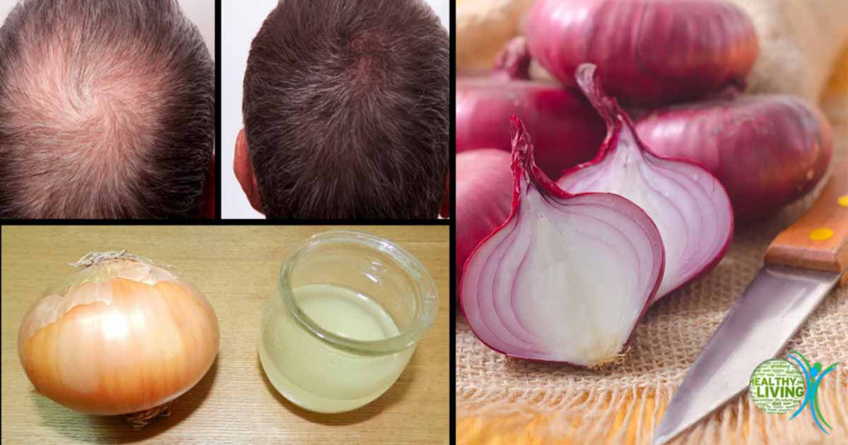 3 Ways Onion Juice Can Be Useful For Your Hair Including