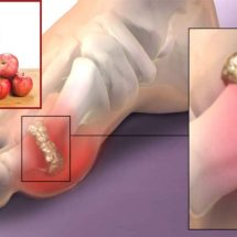 Try This Ingredient to Relieve Joint Pains and Lower Uric Acid Levels