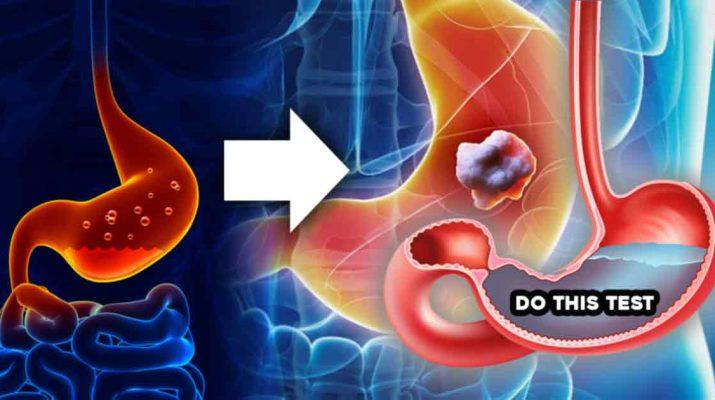 Low Stomach Acid Test