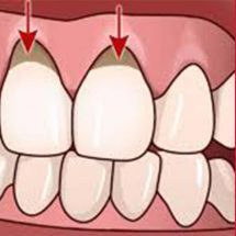 4 Natural Remedies to Grow Back Those Receding Gums