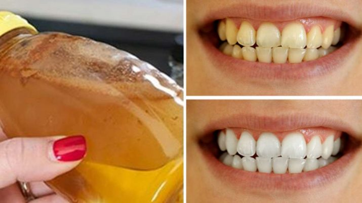 how to make teeth whiter at home