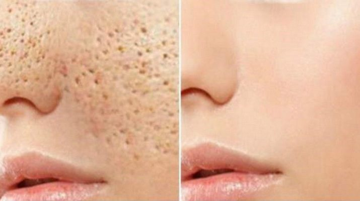 Simple Natural Face Masks to Get Rid of Pores Without Paying Hundreds of Dollars