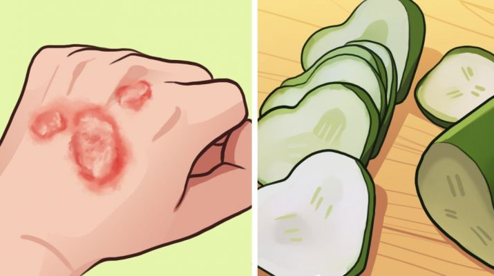 Don't Feel Embarrassed by Eczema. Battle It With These 6 Home Remedies