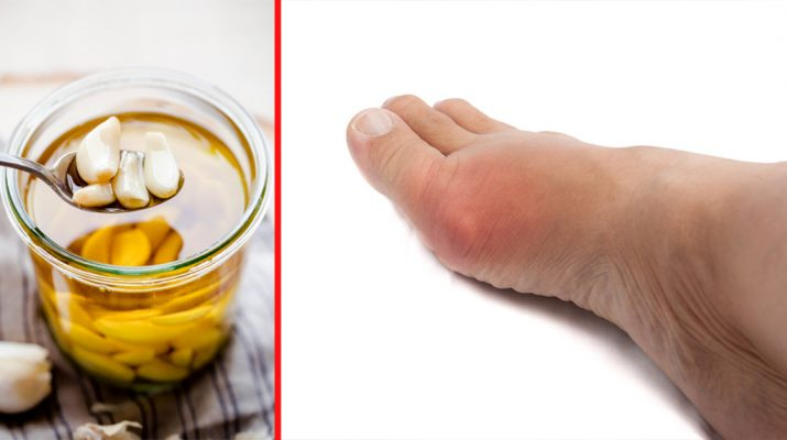Reduce Inflammation in Varicose Veins with Homemade Garlic Oil