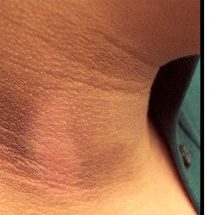 A 15-Minute Treatment for Dark Spots on the Neck, Inner Thighs and Underarms