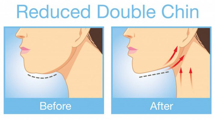 Facial Yoga: How to Eliminate Your Double Chin - Fast!