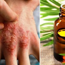 The Essential Oil That Fights Acne, Eczema & Psoriasis