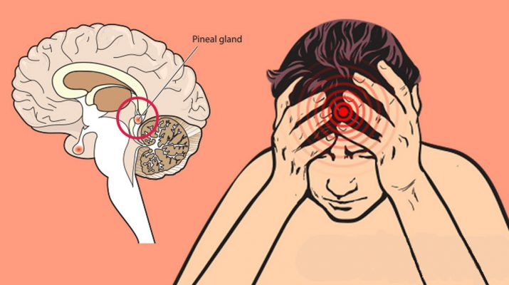 How-Fluoride-Damages-the-Human-Brain,-Especially-the-Pineal-Gland