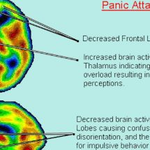 Panic Attacks and #Anxiety linked to low vitamin B and #Iron levels
