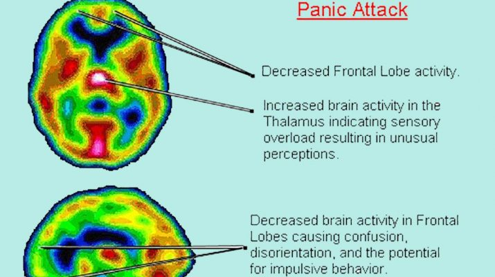 Panic-Attacks-and-#Anxiety-linked-to-low-vitamin-B-and-#Iron-levels