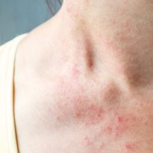 10 Things Itchy Skin Says About Your Health