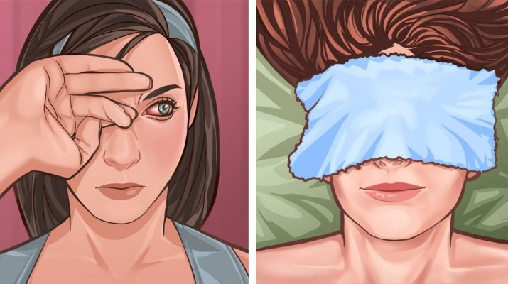 5+-Home-Remedies-For-Itchy-Eyes